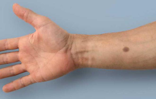 Phương pháp cấy ghép sinh học này sẽ làm xuất hiện nốt ruồi nhân tạo khi phát hiện có ung thư