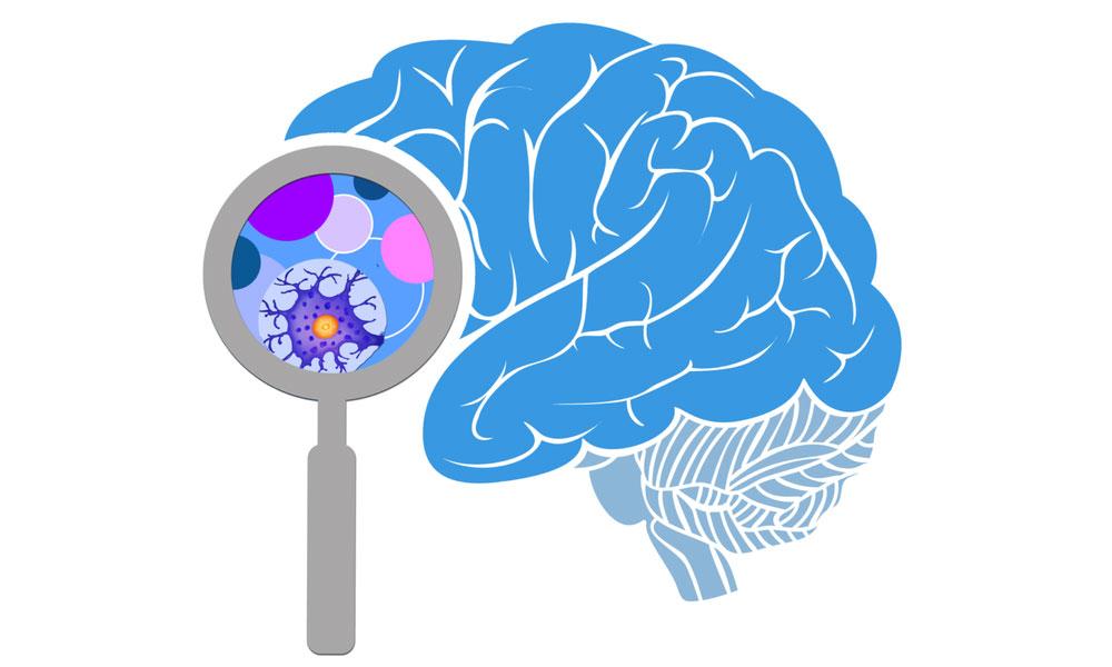 Nghiên cứu cho thấy não bộ vẫn hoạt động sau khi chết, người ta vẫn biết chuyện gì xảy ra